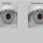 تشخیص عنبیه چشم توسط نرم افزار Matlab