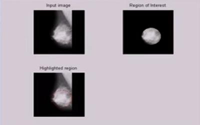 سیستم تشخیص سرطان سینه در نرم افزار matlab